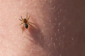 Frightening spider on the hairy skin of hands.