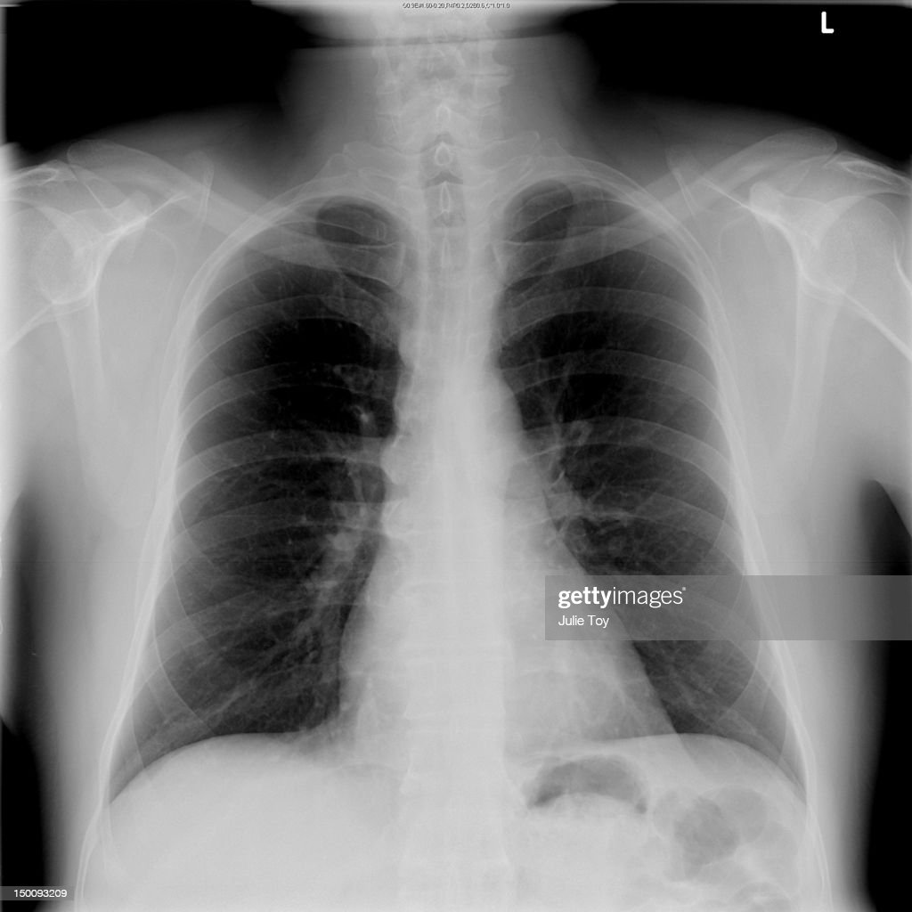 Front Chest x-ray : Stock Photo