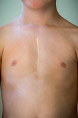 Front view of young caucasian boy with healed surgical scar after heart surgery. Upper body, torso with bare skin.