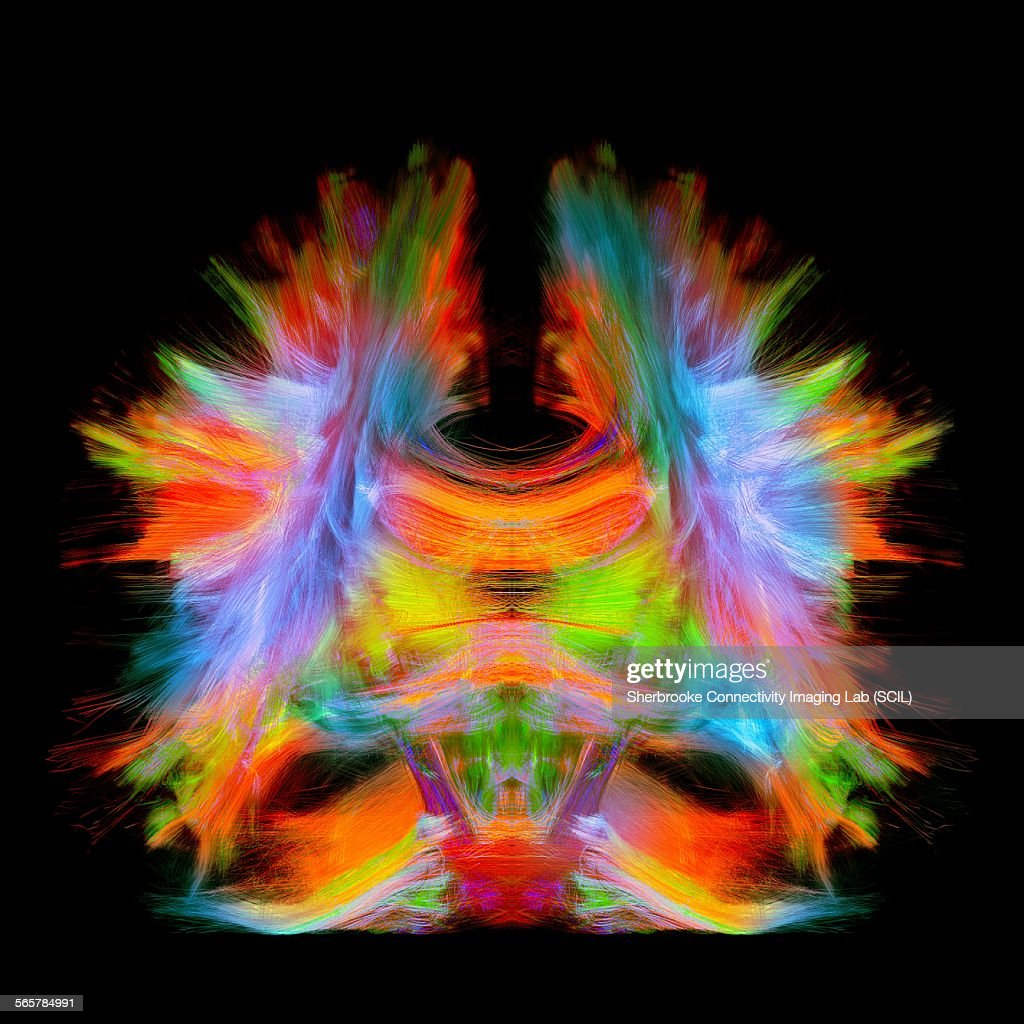 Full brain tractography with artistic color. This is a full brain tracking coming from a super-resolution reconstruction of 0.6 cubic mm. Front view. : Stock Photo