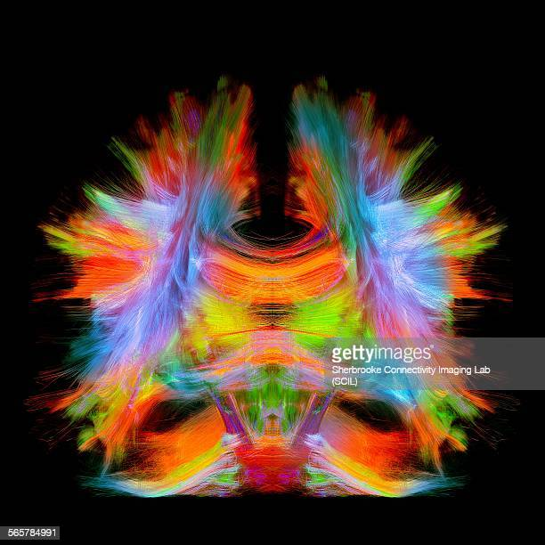 Full brain tractography with artistic color. This is a full brain tracking coming from a super-resolution reconstruction of 0.6 cubic mm. Front view.