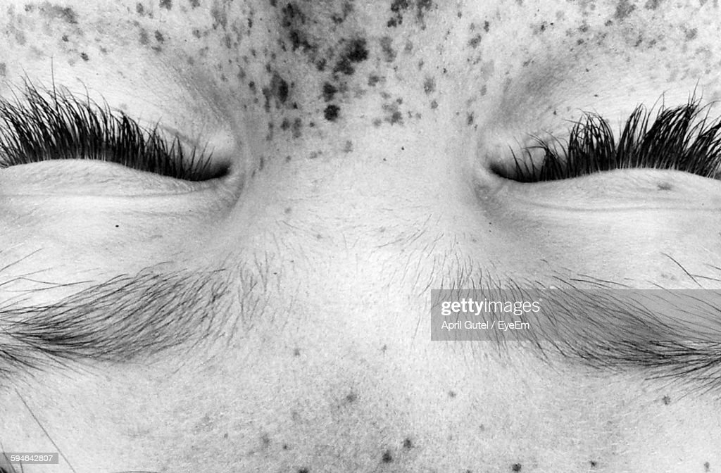 Full Frame Shot Of Person With Freckle