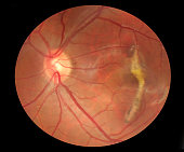 Fundus photo of macular scarring with normal blood vessels and optic nerve