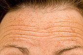 Lots of wrinkles indicate a concerned or worried person.