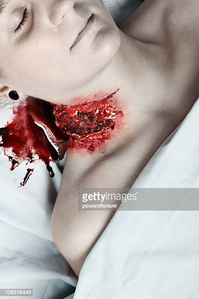 Gaping Neck Wound on Dead Woman
