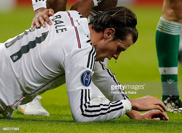 Gareth Bale of Real Madrid bloody nose after receiving a blow during the UEFA Champions League Group B match between Real Madrid CF and PFC...