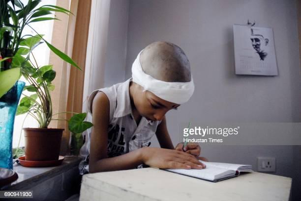 Gautam from Rourkela Orissa after a surgery to fix Baha Bone Anchor Hearing Aid on Congenital Defect at Hinduja Hospital Mahim