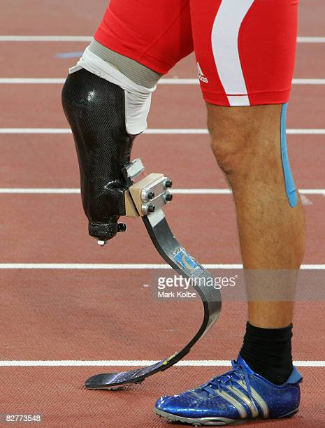 A general view is seen of the prosthetic leg belonging to Urs Kolly of Switzerland as he prepares to race in the 400m of the men's pentathlon P44...