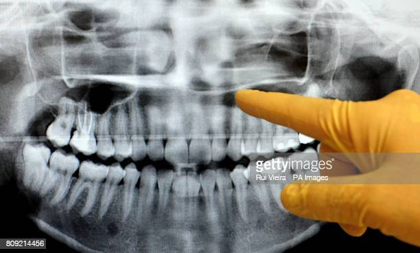 General view of dentist checking an xray