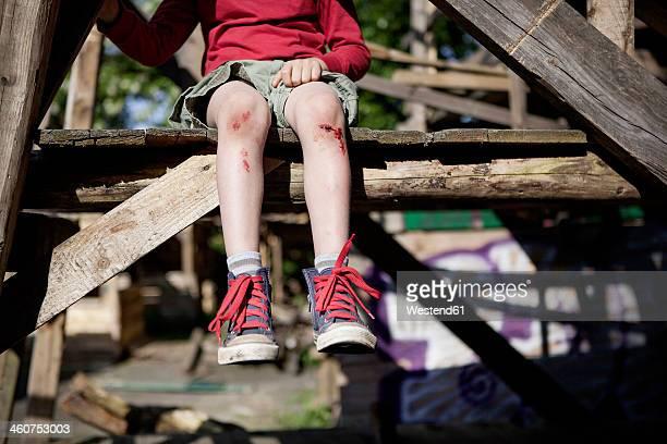 Germany, North Rhine Westphalia, Cologne, Boy injured in playground