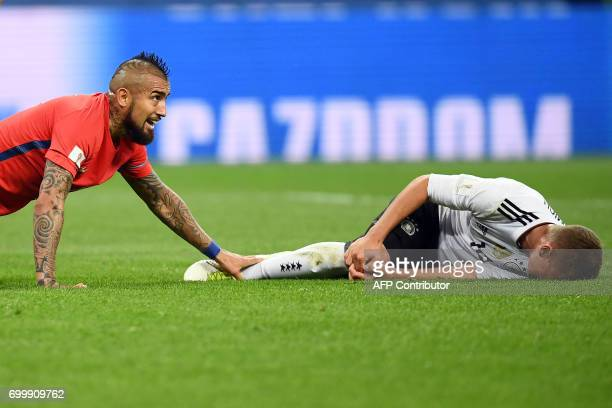 TOPSHOT Germany's defender Joshua Kimmich lies on the pitch and reacts in pain after falling with Chile's midfielder Arturo Vidal during the 2017...