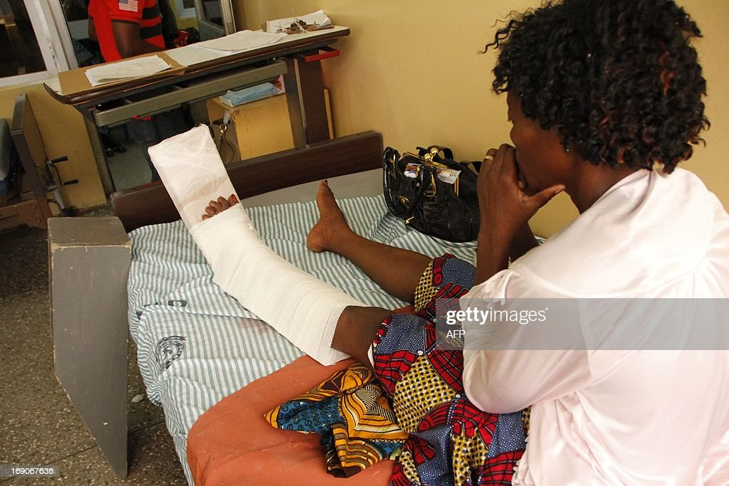 Gerturde Sumbamalah looks at her left leg on a bed in a hospital in Accra, after it was broken in a crush in an evangelist church of Accra, on May 19, 2013. The offer of free anointing water at a popular church caused a stampede that killed four and wounded 30 on May 19 in Ghana, west Africa's second largest economy.