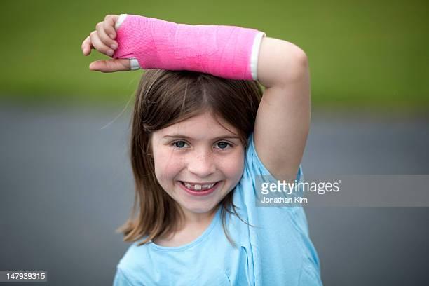 Girl proud of her broken wrist shows off her cast