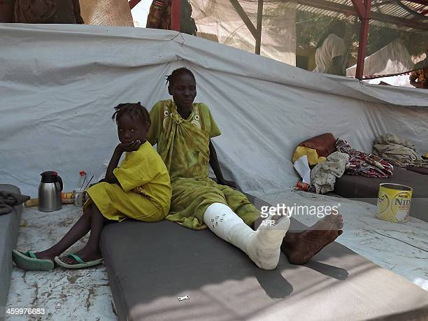 A girl sits next to a wounded relative after she received treatment at the Malakal Hospital in the Upper Nile State of South Sudan on December 31...