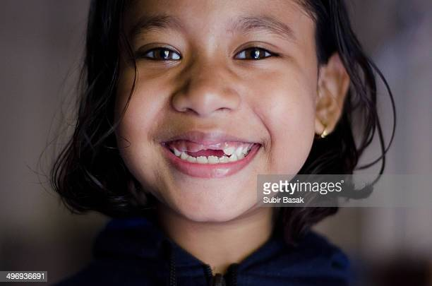 A girl smiling with missing front teeth