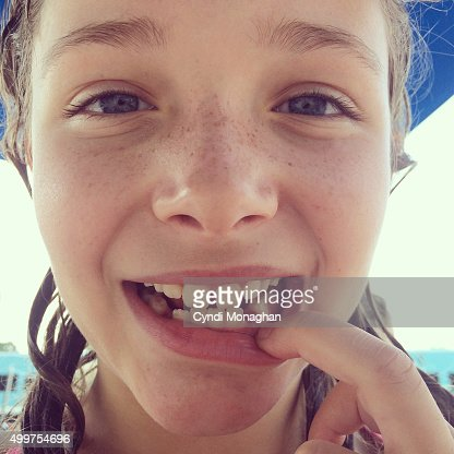 Girl with Lost Tooth