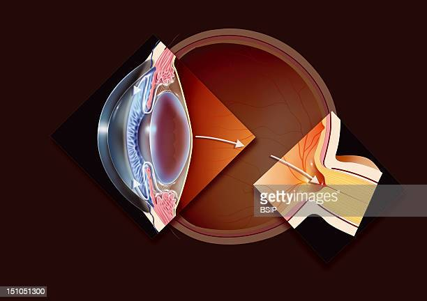 Glaucoma Illustration Of A Glaucomatous Eye With Two Highlighted Areas Showing Open Angle Glaucoma And A Glaucomatous Blind Spot