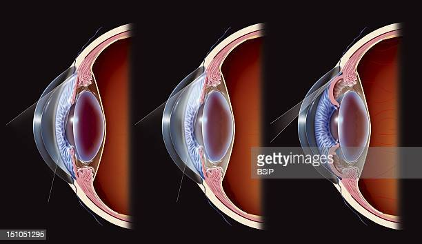 Glaucoma Iridial Angle Open And Closed Angles Anterior Part Of The Eye Comparison Between What Occurs First In A Healthy Eye Then In An Eye Suffering...