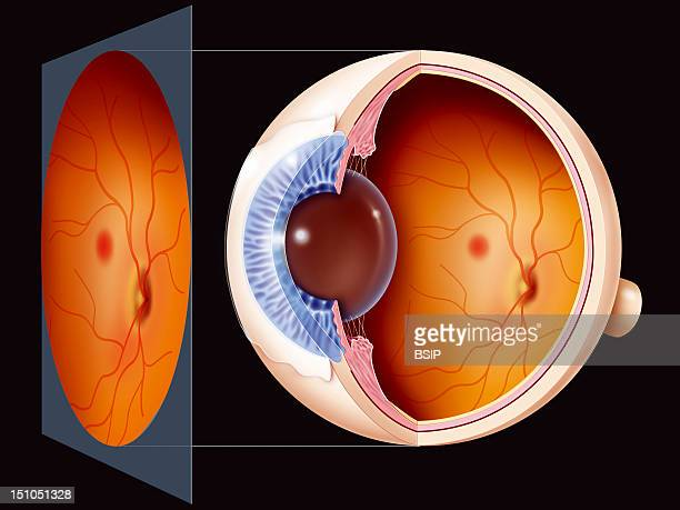 Glaucoma Posterior Area Of The Eye Illustration Of An Examination Of The Posterior Area Of The Eye With In The Forefront The Results As Seen By The...