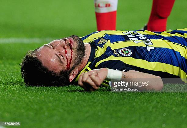 Gokhan Gonul of Fenerbahce splits his lip during the UEFA Europa League semi final second leg match between SL Benfica and Fenerbahce SK at the...