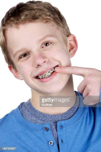 I got braces!