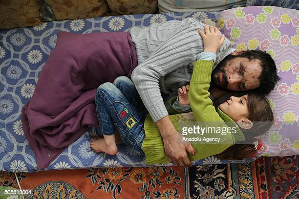 Gozyasi Nasir daughter of Mamun Halid Nasir who lost his legs right hand fingers eyes and hearing in an barrel bomb attack carried out by the war...