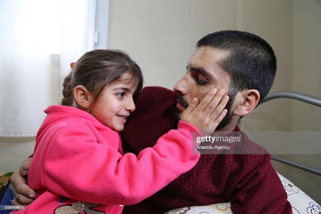 Gozyasi Nasir (L), daughter of Mamun Halid Nasir (R), 27, who lost his legs, right hand fingers, eyes and hearing in an barrel bomb attack carried out by the war crafts belonging to Assad Regime Forces in Idlib, is seen near her father at their house in the Reyhanli District of Hatay, Turkey on February 11, 2016. Mamun Halid Nasir gained his sight again after IHH Humanitarian Relief Foundation paid surgery expenses.