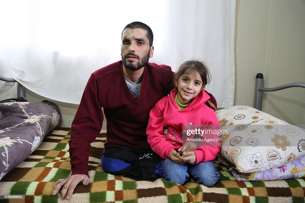 Gozyasi Nasir (R), daughter of Mamun Halid Nasir (L), 27, who lost his legs, right hand fingers, eyes and hearing in an barrel bomb attack carried out by the war crafts belonging to Assad Regime Forces in Idlib, is seen near her father at their house in the Reyhanli District of Hatay, Turkey on February 11, 2016. Mamun Halid Nasir gained his sight again after IHH Humanitarian Relief Foundation paid surgery expenses.