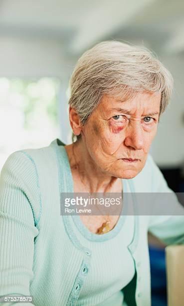 Grandmother with black eye, portrait