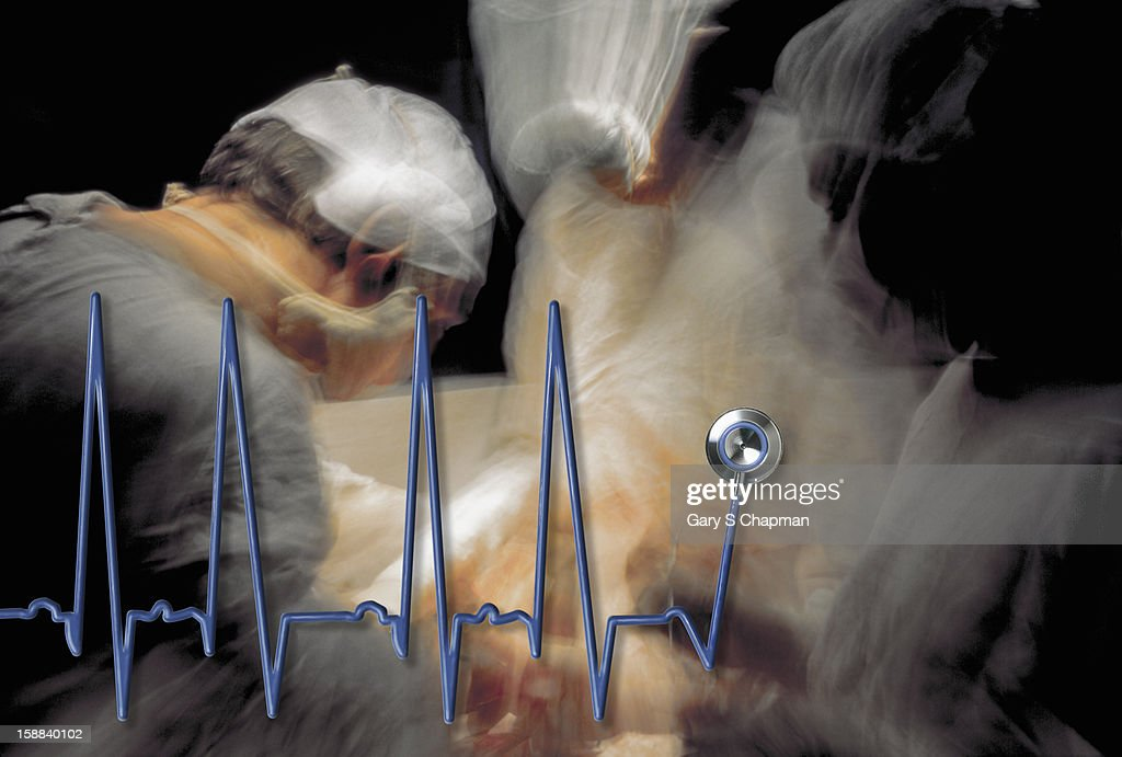EKG graph over an operating room scene : Stock Photo
