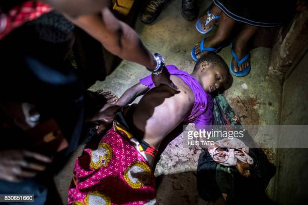 Graphic content / A person points the bullet hole on the body of a young girl allegedly killed by gunshot injury in the balcony of his house at...