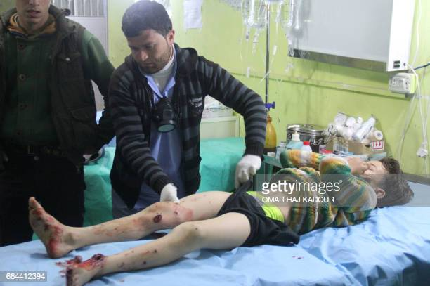 Graphic content / A Syrian child receives treatment at a hospital in Khan Sheikhun a rebelheld town in the northwestern Syrian Idlib province...