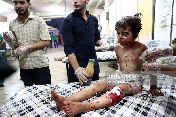 Graphic content / An injured Syrian child receives treatment at a makeshift hospital following a reported air stike on the rebelheld town of Douma...