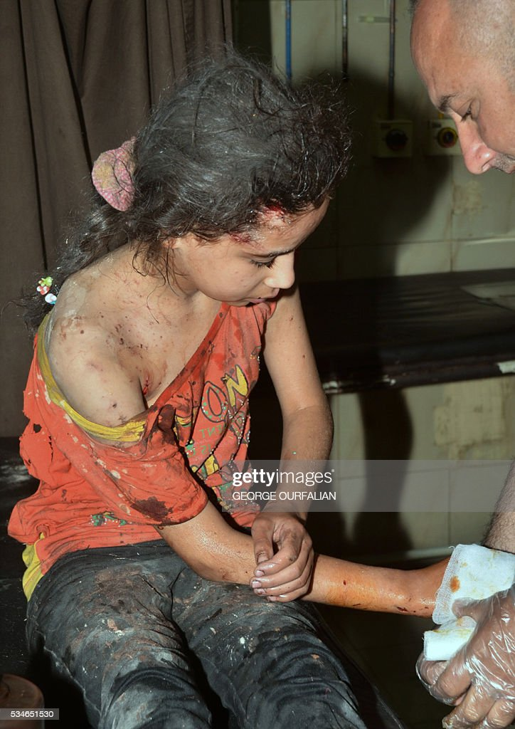 Graphic content / An injured Syrian girl receives treatment following shelling on the government-held Meidan neighbourhood, which is historically an Armenian area, of the northern Syrian city of Aleppo, on May 27, 2016. OURFALIAN