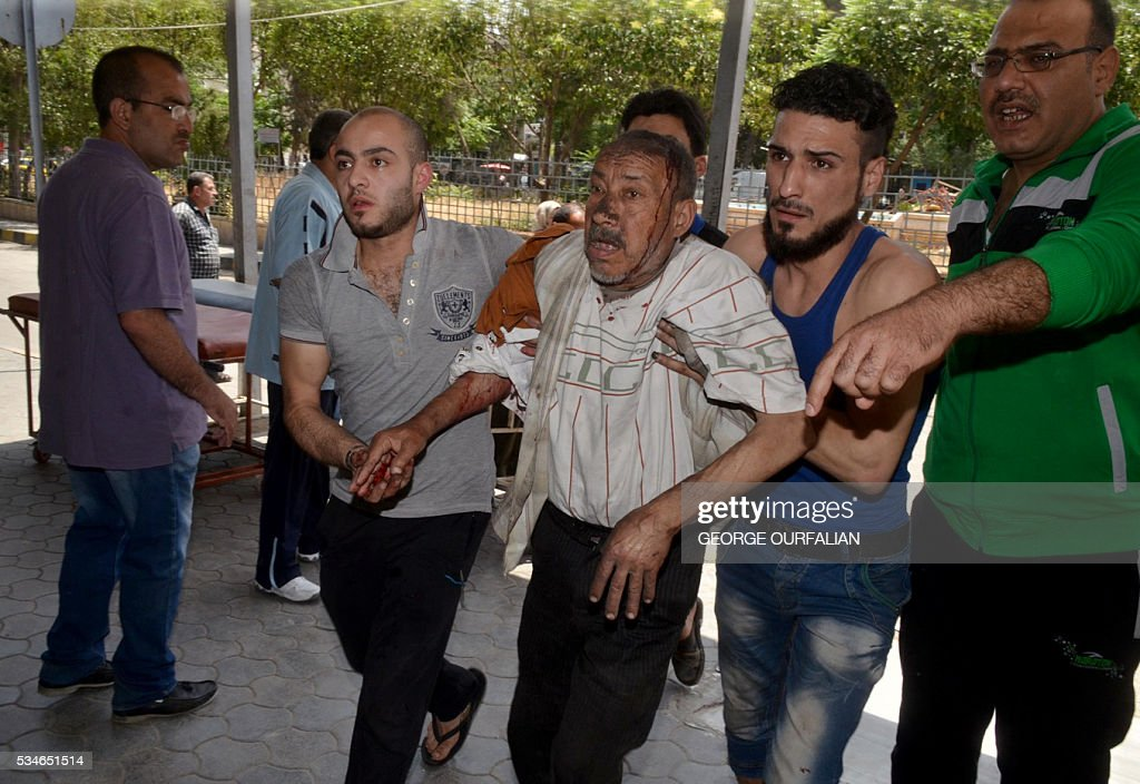 Graphic content / An injured Syrian man is helped outside a hospital following shelling on the government-held Meidan neighbourhood, which is historically an Armenian area, of the northern Syrian city of Aleppo, on May 27, 2016. OURFALIAN