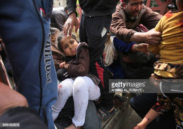 Graphic content / An Iraqi girl looks towards the camera as she and other civilian who were injured by a mortar shell fired by Islamic State group...