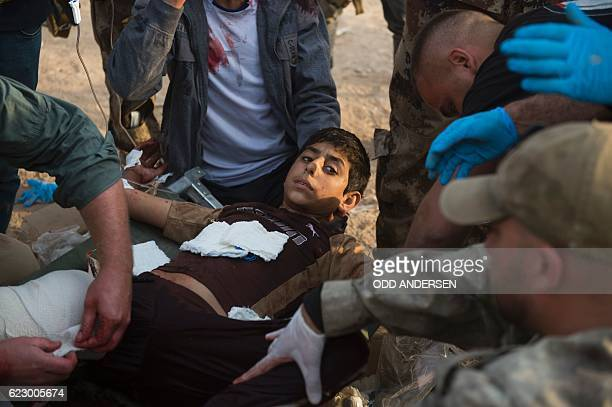Graphic content / Foreign volunteers treat 12yearold Mohammed at an outdoor field clinic in the Samah neighbourhood in Mosul on November 13 2016 A...