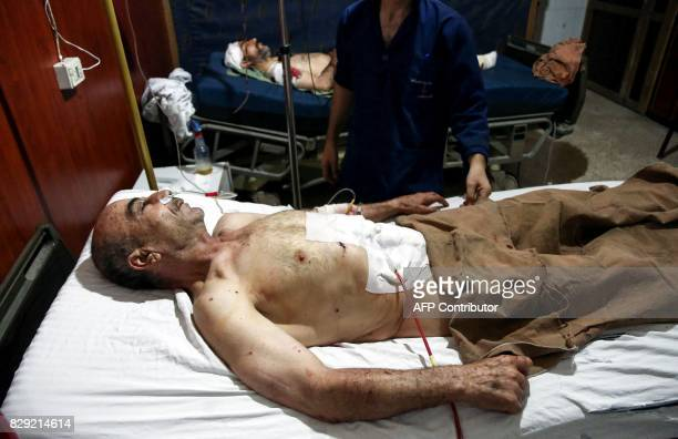 Graphic content / Injured Syrian men reportedly from regime shellings lie injured on beds at a hospital in the rebelcontrolled town of Hamouria in...