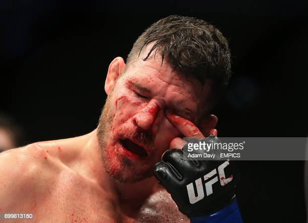 Great Britain's Michael Bisping removes blood from his eyes during his bout during the UFC Fight Night