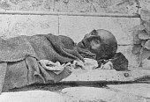A Greek civilian victim of the Great Famine the period of mass starvation during the Axis occupation of Greece World War II 1942