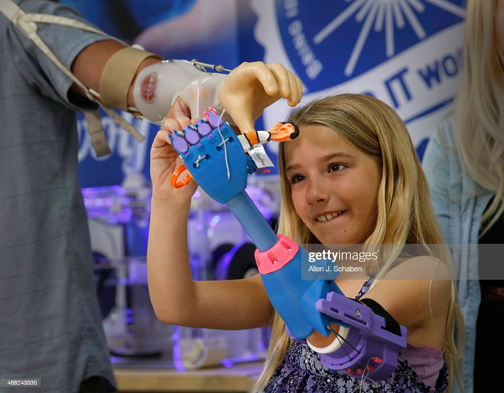 Greg Lennox uses a prosthetic to hand a toy to his 7yearold daughter Faith Lennox of Lakewood as she gasps it with her new left hand made by a 3D...