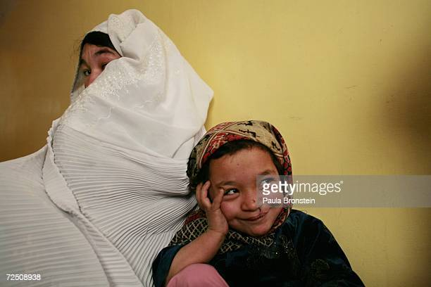 Gulsun waits with her mother to get her stitches after her cleft lip and palate operation at a special clinic to help cleft lip and palate patients...