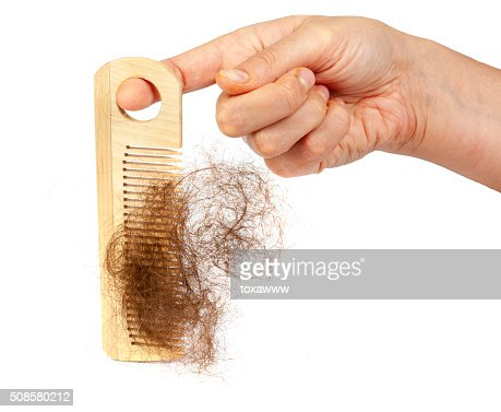 Hair loss concept : Stockfoto