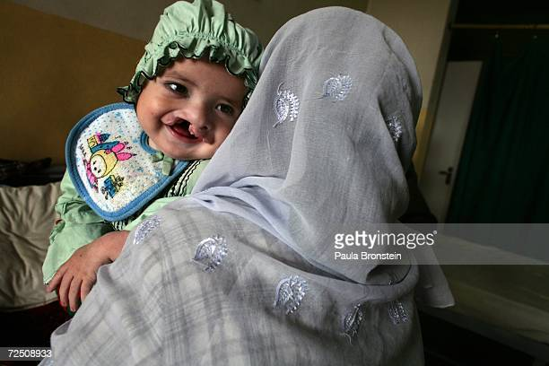 Hakmatullah smiles while being held by his mother Fazia waiting for surgery at a special clinic to help cleft lip and palate patients at the CURE...