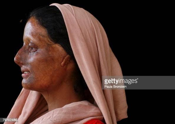 Haleema AbdulGhafar a victim of acid violence poses in Islamabad June 6 2007 Haleema is from a small village in the province of Muzafir Gharh Jatoi...