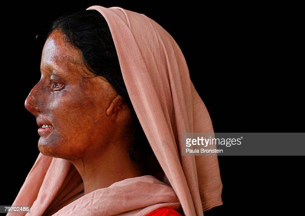 Haleema AbdulGhafar a victim of acid violence poses in Islamabad June 6 2007 Haleema is from a small village in the province of Muzafir Gharh Jatoi...