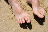 Female feet on a sandy beach with deformities: bunions and hammertoes. Horizontal.