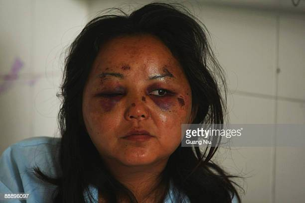 Han Chinese woman injured during the recent ethnic clashes lies in a bed at a hospital on July 8 2009 in Urumqi the capital of Xinjiang Uighur...