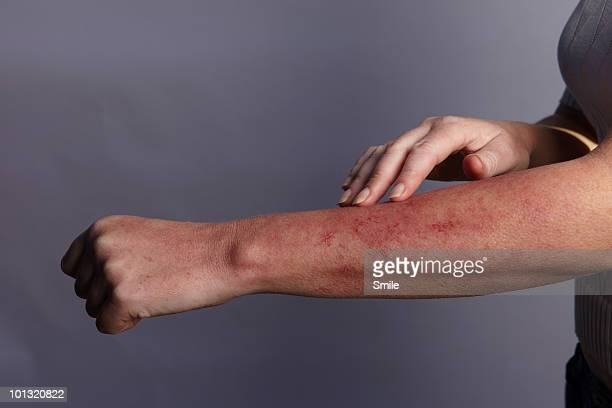 Hand feeling rash on arm