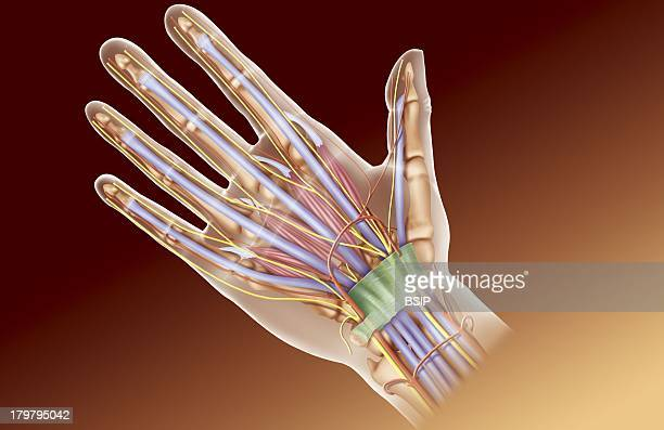 Hand Illustration Anatomy Of The Palmar Surface Of The Hand Showing The Carpal Tunnel Terminating In The Anterior Annular Ligament Containing The...